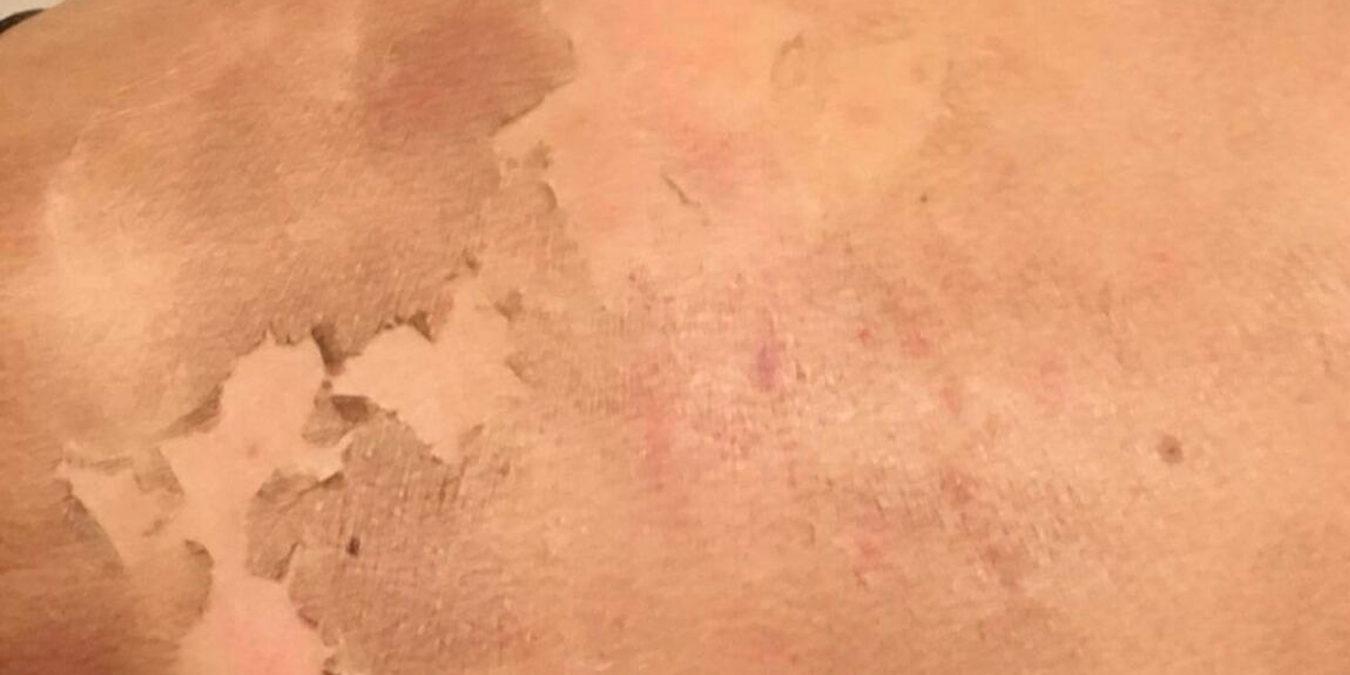 Na vier dagen beginnen de dode huidlagen los te komen van de nieuwe jonge gezonde huid.